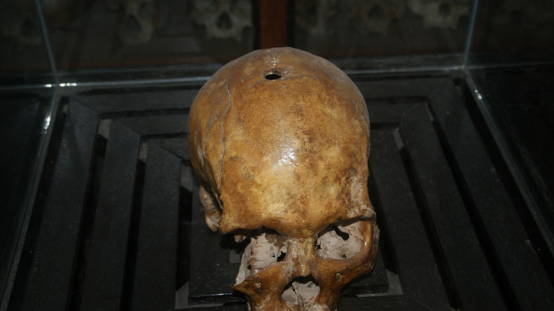 The Skull of a Former Prisoner Showing The Bullet Hole That Killed Him